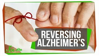 Researchers Reverse Alzheimer's Memory Loss (in Mice) | SciShow News