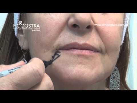 Relleno de Surcos Faciales (13006)