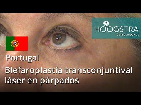 Blefaroplastía transconjuntival láser en párpados (16043)