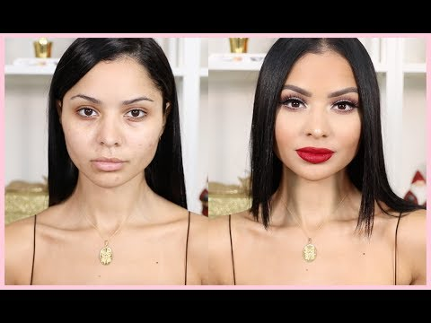 Chit Chat Get Ready With Me | Life Update - Lip Injections- Living in LA
