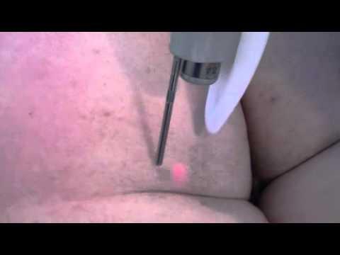 epilation laser integrale femme