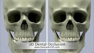 DentalArt3D. 3D Dental Occlusion