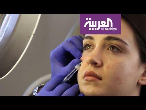 صباح العربية: كيف تتخلصين من الهالات السوداء  - نشر قبل 1 ساعة