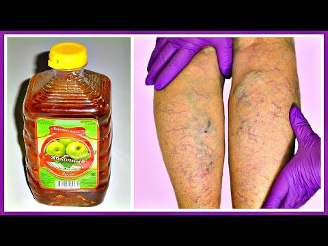 Яблочный УКСУС уберет «ЗВЕЗДОЧКИ» и сосудистую сетку на ногах! ПРОСТОЙ рецепт при варикозе.