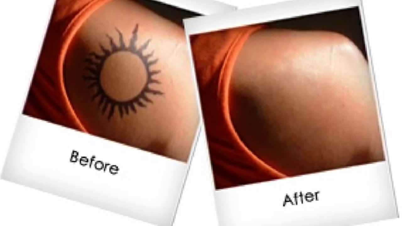 28 how to remove tattoos naturally how to remove for How to get rid of a tattoo at home