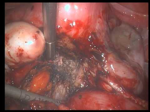 30min complete pelvis dissection in DIE with rectal and ureteral stenosis