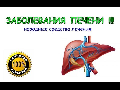 Лечение печени народными средствами – Все народные средства