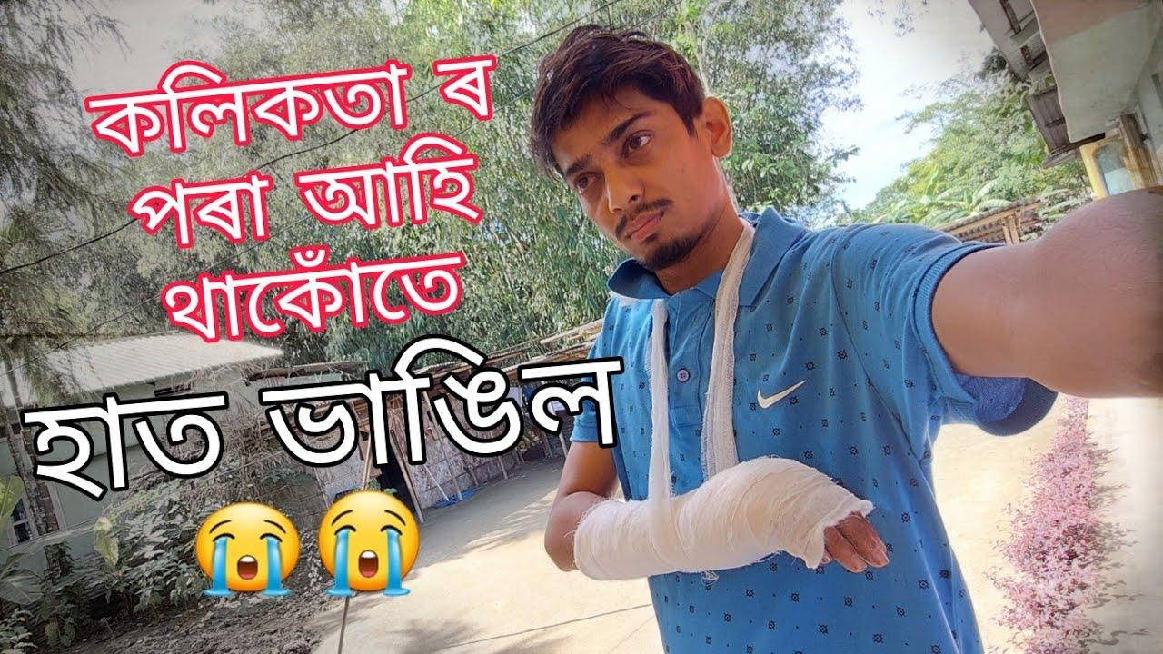 হাত ভাঙিল মোৰ 🥲🥲 - A small accident happened with me