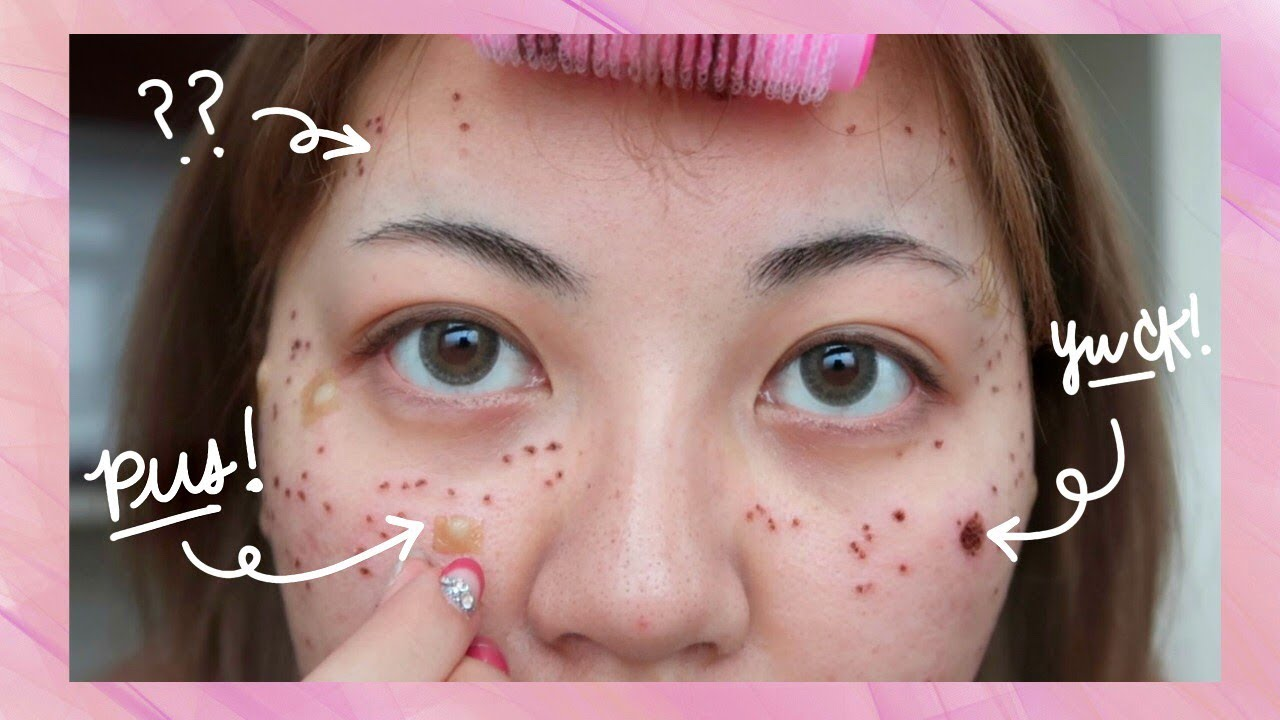 Results Of Acne Laser Treatment Before After Youtube