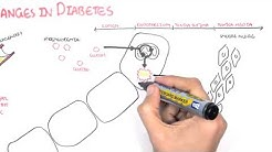 hqdefault - Causes Microvascular Complications Diabetes