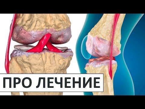 Деформирующий артроз: симптомы и лечение