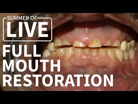 Full Mouth Dental Restoration - LIVE Treatment