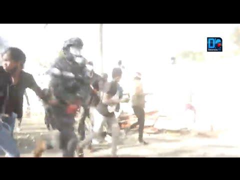Colobane : 1 gendarme perd la main après l'explosion d'une grenade (âmes sensibles s'abstenir)