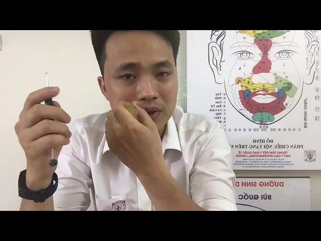 Cách tự làm giảm viêm xoang, viêm mũi bằng Diện Chẩn Bùi Quốc Châu