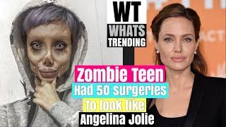 Sahar Tabar The Zombie Teen Who Had 50 Surgeries To Look Like Angelina Jolie