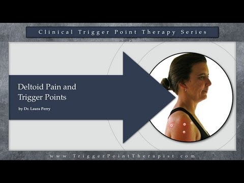 Deltoid Pain and Trigger Points