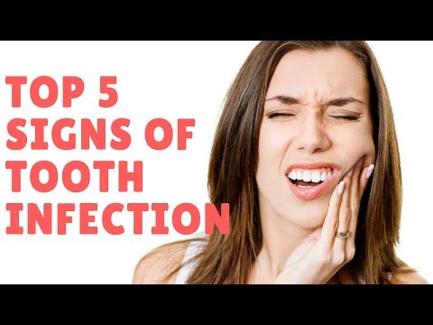 Top 5 Signs of Tooth Infection- What are the Causes??