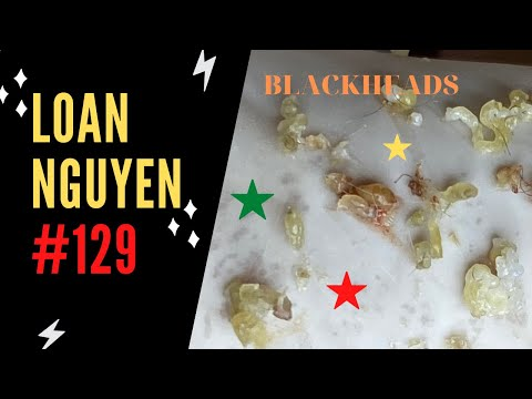 Removal Acne For Customers Women Before Covid-19 Come (129)   Loan Nguyen