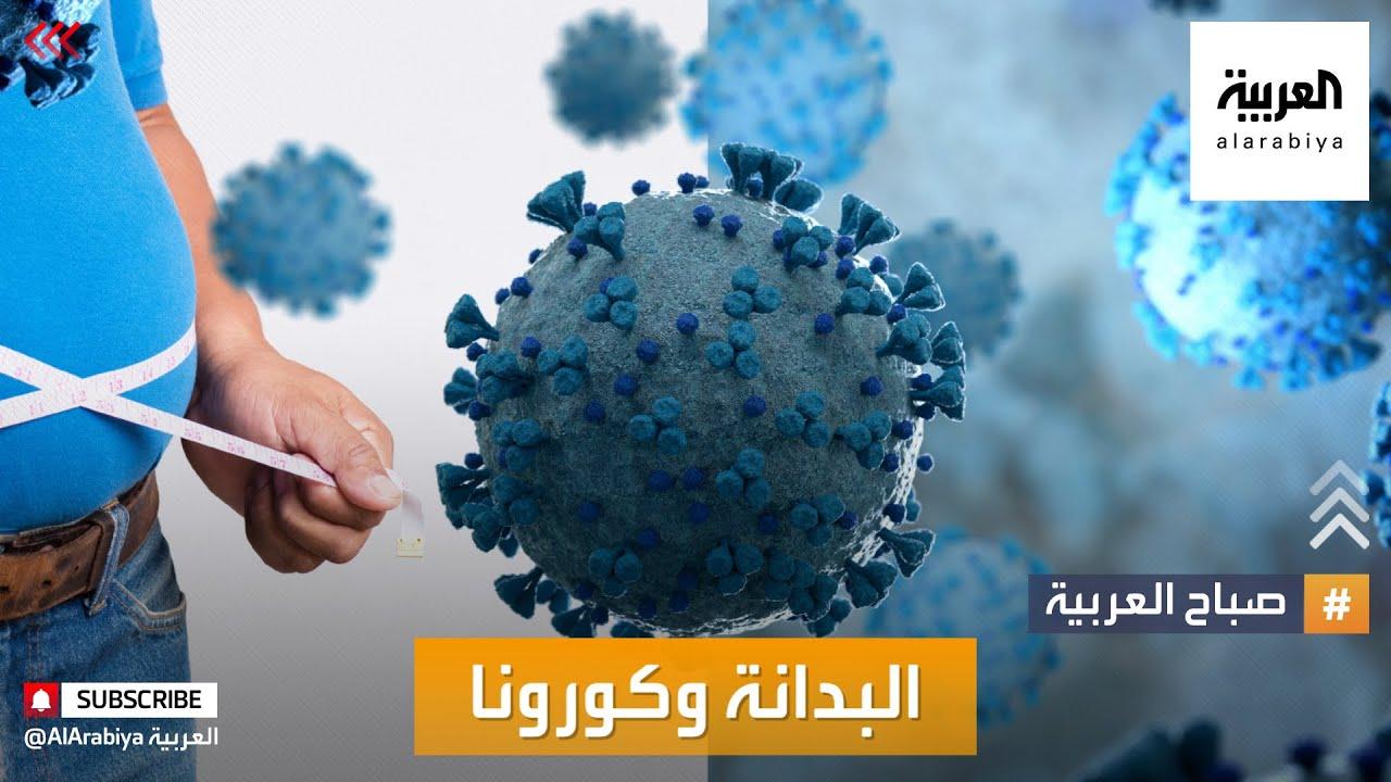 صباح العربية | تحذيرات من العلاقة بين الوزن الزائد ومضاعفات كورونا  - نشر قبل 3 ساعة