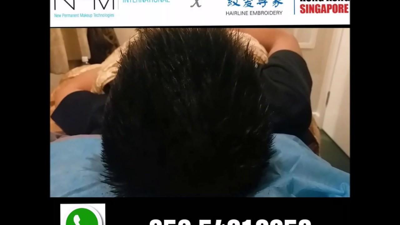 解構甩頭髮原因|從根源解決脫髮和禿頭問題 - YouTube