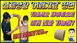 [실제상황] '어깨치료' 영상 장면 공개…