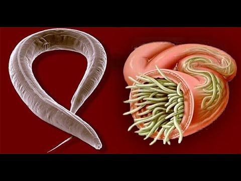 Remedios caseros para expulsar las amebas y para?sitos intestinales