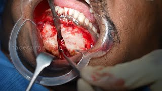 Road Traffic Accident Fracture on Lower Mandible - Subchondral Fracture