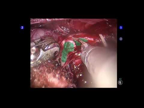 Prostatic Capsular Incision During Radical Prostatectomy Youtube