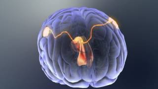 Inside the autism brain: Brain's bridge could yield clues to faulty wiring in autism
