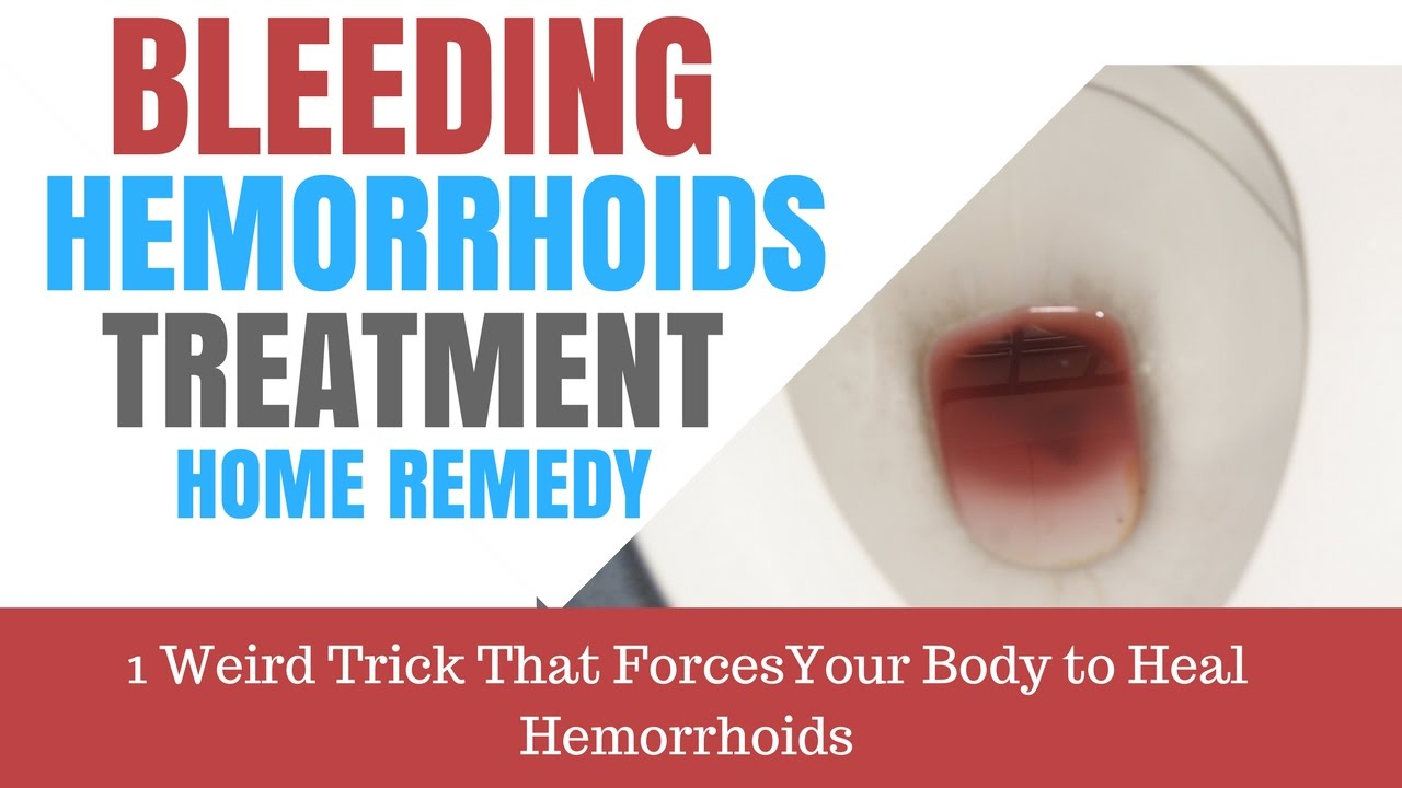 Bleeding Hemorrhoids Treatment Home Remedy Hour Cure YouTube - Home remedies stop bleeding