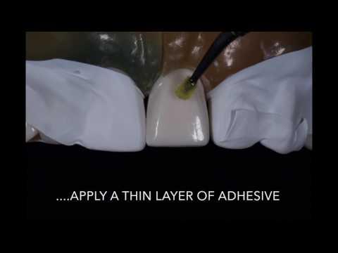 Porcelain Veneer Cementation step by step technique
