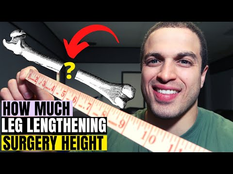 How much Limb Lengthening Height is safe to gain