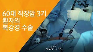 60대 직장암 3기 환자의 복강경 수술 - (2017.…