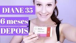 hqdefault - Diane 35 Ajuda No Tratamento Da Acne