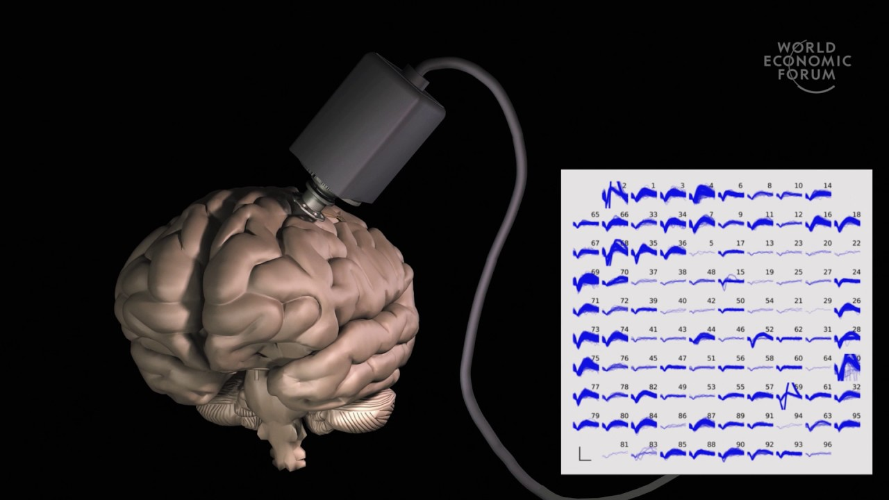 Engineering brain-computer interfaces to regain control of movement    Jaimie Henderson cc6de38523