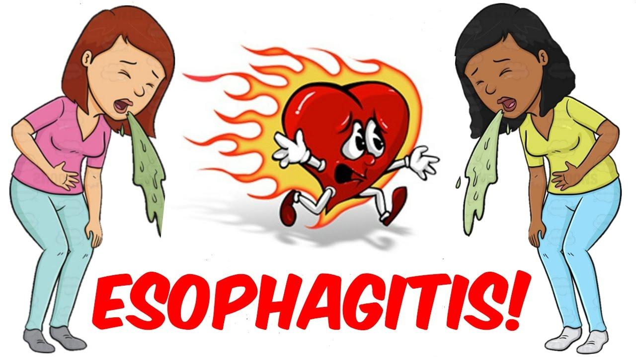 Esophagitis