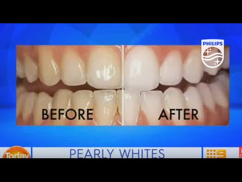 Zoom Professional In Chair Teeth Whitening On Today Extra