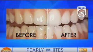Zoom professional in chair teeth whitening on Today EXTRA | Philips | Dental Professionals