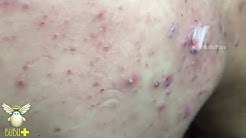 hqdefault - Back Covered In Acne
