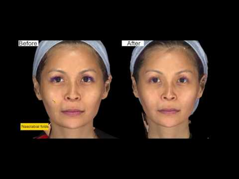 Ellanse procedure at Shang-Li Dermatologic & Aesthetic Clinic