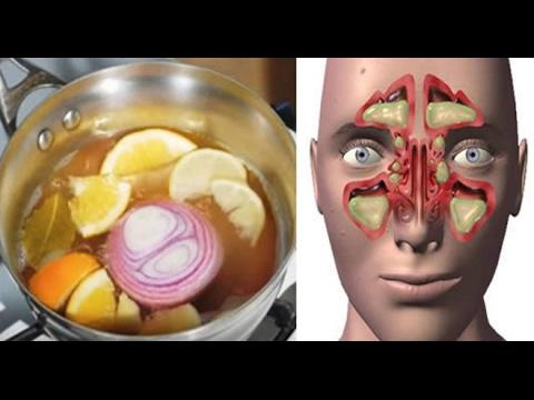 """Lo Llaman """"La-Bomba"""" El Remedio Que Quita La Congestión Nasal, Sinusitis Y Gripe En Un Día!!"""