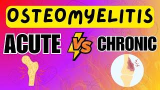 apa itu osteomielitis ?.