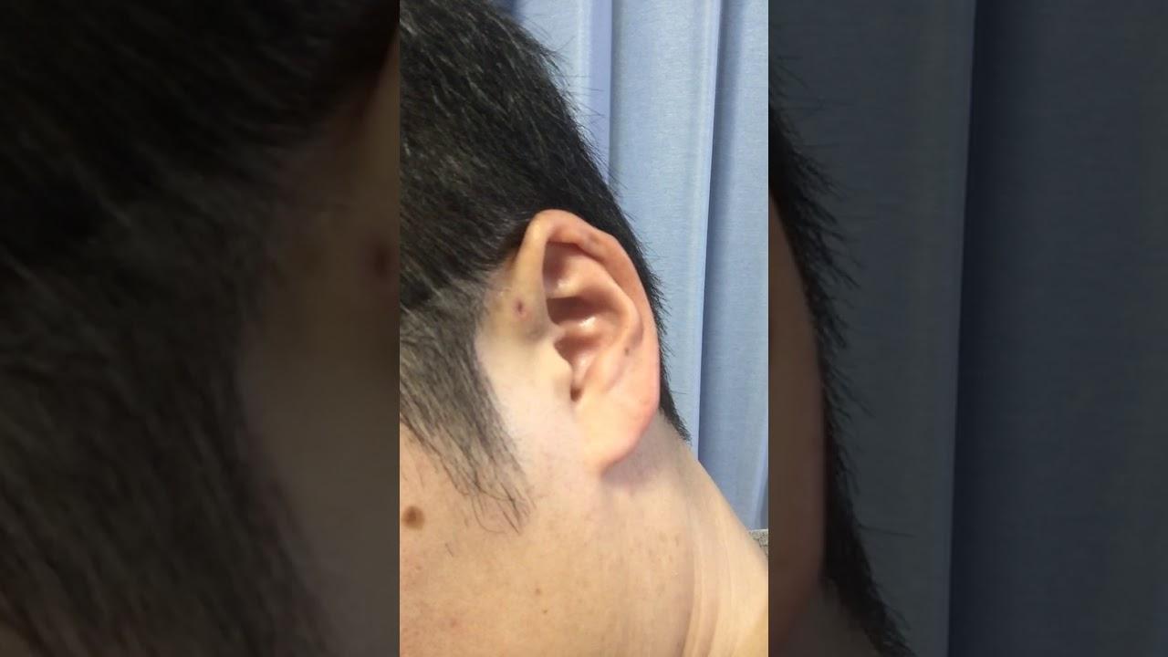 好き 臭い 耳 瘻孔