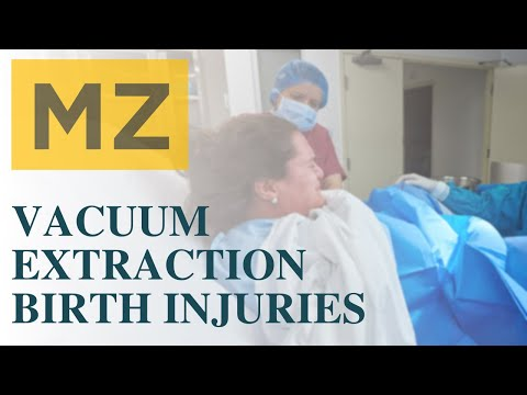 Vacuum Extraction Birth Injury Lawsuits