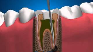 Терапевтическая стоматология   Лечение периодонтита