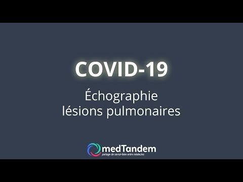 COVID-19 ECHOGRAPHIE LESIONS PULMONAIRES.