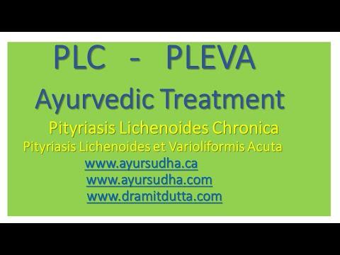 PLC, PLEVA, Pityriasis Lichenoides Treatment @ AYUR-SUDHA Jalandhar,India. Brampton, Canada