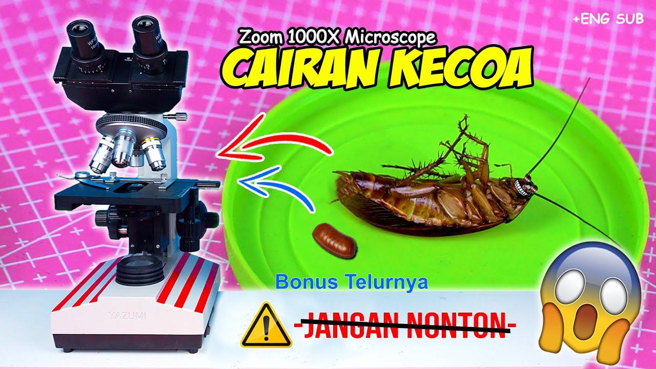 INILAH ISI PERUT KECOA & TELUR NYA   Cockroach Egg & Abdomen Microscope Zoom 1000X