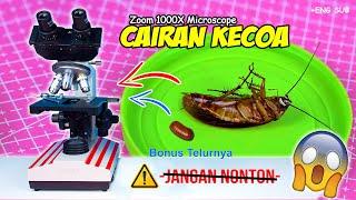 Download lagu ISI PERUT KECOA & TELUR | Cockroach Egg & Abdomen Microscope Zoom 1000X