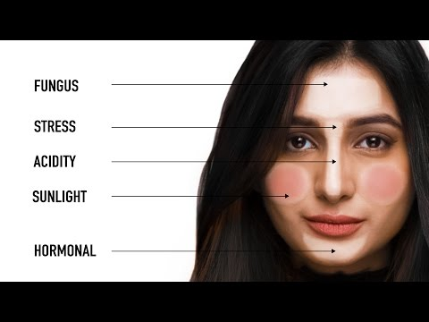 What Your Pimples Say About Your Health | Face Mapping